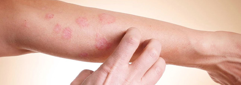 Кожное заболевание – микробная экзема